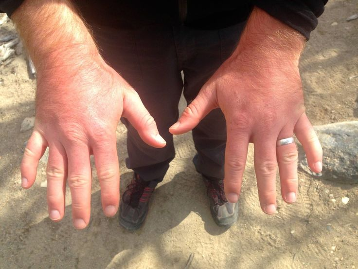 Swollen hands while hiking