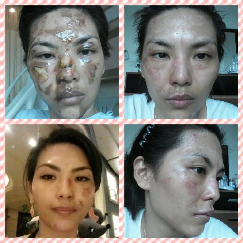 During a BBQ Aini got burnt in her hair, face, arms n legs. Her skin tissue were all blackened & had to take medication by doctor。She was recommended to use Nu Skin Enhancer and the blackened burnt tissue gradually peeled off as her skin started to heal. Thereafter, she started using the AgeLOC Galvanic Spa and R2 and her condition improved very well now. She is now a true believer in Nu Skin products。 Just register to www.nuskin.com using sponsor code ID: PL3301057 for 30% discount!