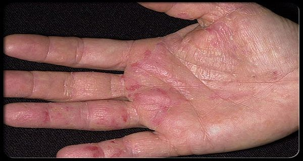 Different cancer types have different symptoms and need different therapies and methods of treatment. However, all cancer types have one thing in common – the first symptoms occur on the hands. Namely, there are British scientists suggesting that the very first signs of probable cancer show up on the hands in few forms like cracking …