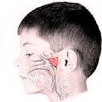Аденоидами называют глоточную миндалину, расположенную на границе носовой и ротовой полостей.     В норме, она небольших размеров, а после 12 лет происходит ее атрофия. При частых воспалительных процессах происходит гипертрофия миндалин.