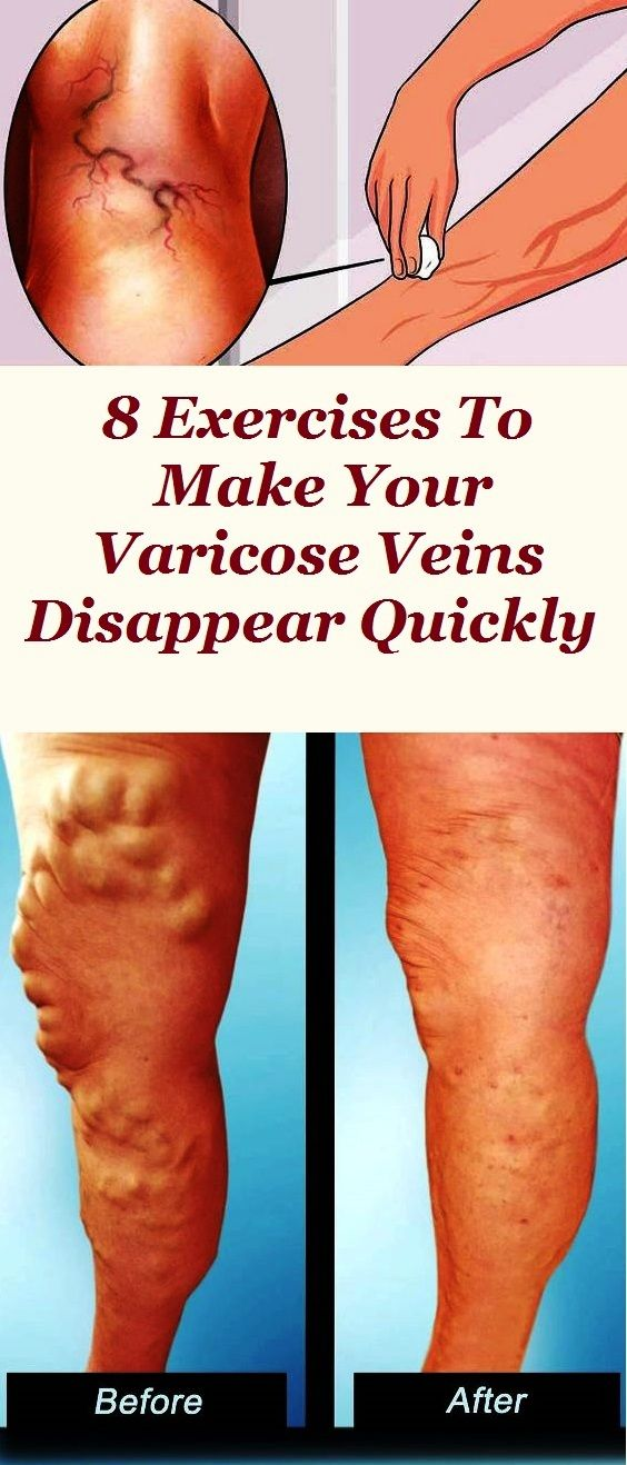 A Varicose Vein Is Permanent Dilation Of Superficial That Stops The Return Blood To Heart Muscle Veins Are Dilated