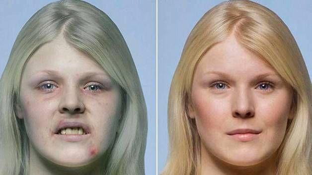 Tupakointi vähentää muun muassa ihon kimmoisuutta ja vaikuttaa sen väriin. Ohessa havainnollistus siitä, miltä tupakoitsijan ja tupakoimattoman henkilön kasvot voivat näyttää.