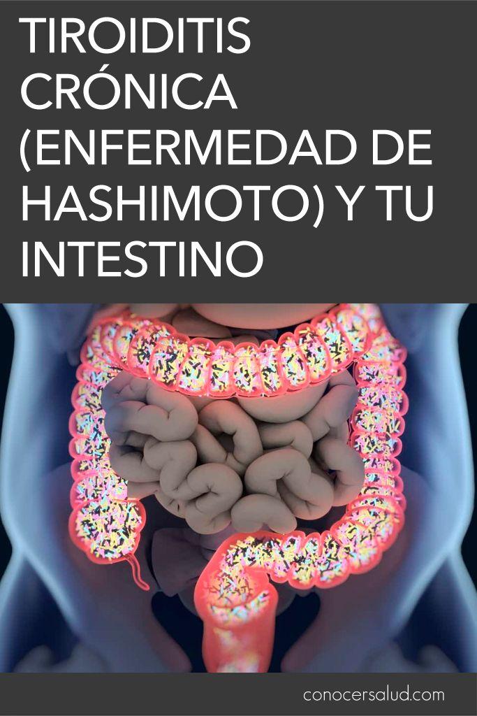 dieta para personas con enfermedad de hashimoto