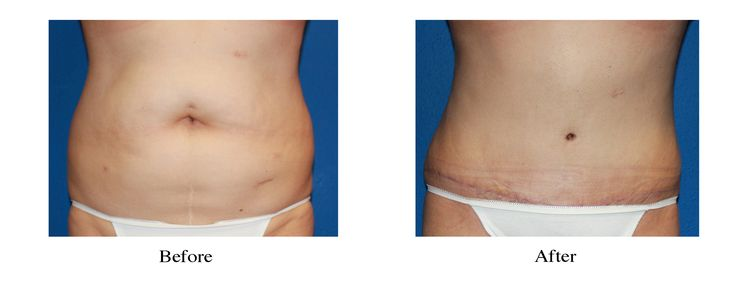 Tummy Tuck with Liposuction. Cosmetic plastic surgery in Spokane, Tri Cities Wa,…