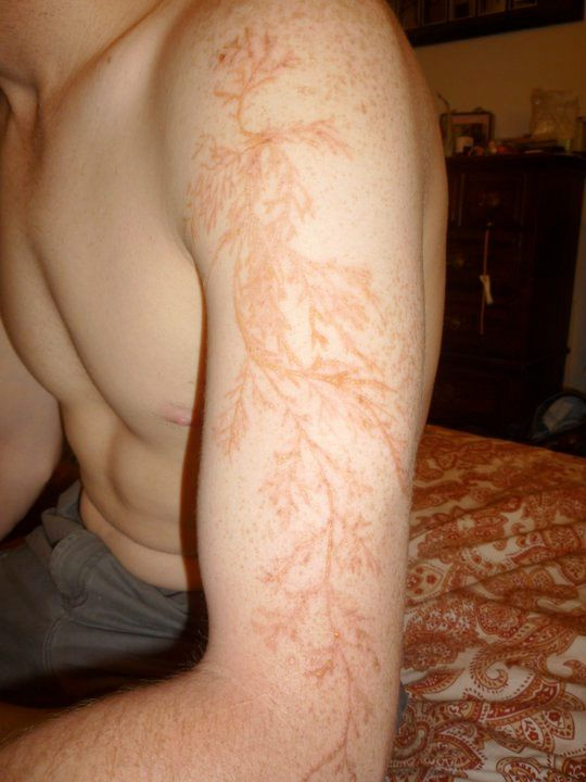People who are struck by lightning are sometimes left with tattoo-like markings called Lichtenberg figures or lightning flowers. This guy was out tending to his garden when he was struck and left tattooed. (whoa!)
