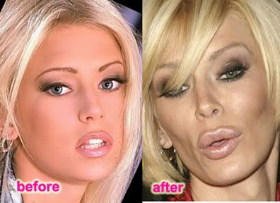Young Breast Augmentation Before And After jenna jameson plastic ...