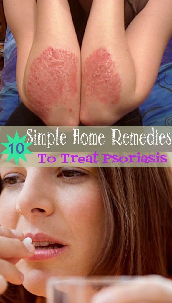 10 Simple Home Remedies to Treat Psoriasis Natural Home Remedies for SkinDisorder
