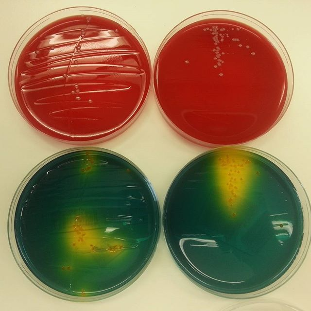 #manualvsautomatic #walkawayspecimenprocessing (WASP) by #copanitalia #bacteriology #microbiology #bacteria #mikrobiologi #bakterier #nofilter by microbiologynor