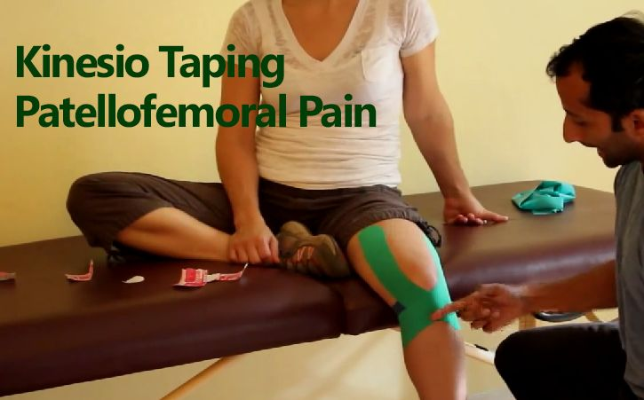 Kinesio Taping Patellofemoral Pain Kinesio taping for patellefemoral pain, after knee injury, chondromalacia patella, knee arthritis, etc. This is a very effective taping technique for all sorts of different knee injuries and pain.