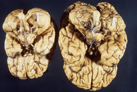 Miniature 'human brain' grown in lab By James Gallagher Health and science reporter, BBC News