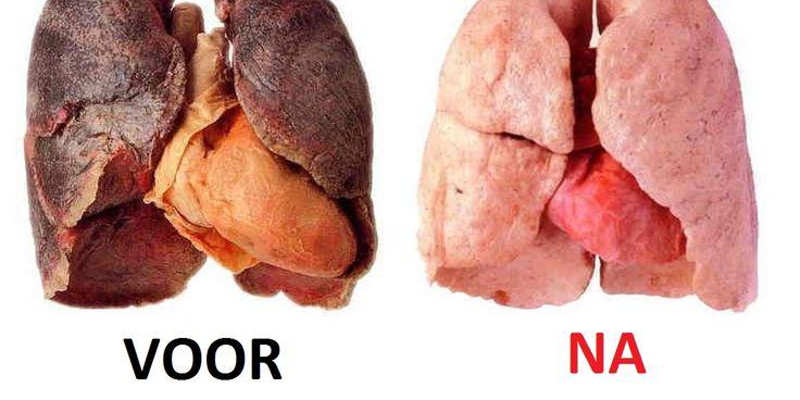 We weten allemaal dat roken een van de dodelijkste gewoontes op onze planeet is. Maar toch houdt ons dat niet tegen van het toch te doen. Miljoenen mensen lijden aan gezondheidsproblemen veroorzaakt door roken. Voor elke persoon die het doodt, zijn er 30 personen die ernstige ziektes gerelateerd aan roken hebben. Afbeelding: www.shared.com De schade …