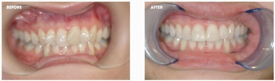 Straighter teeth in 6 months with Cfast at Bury Dental Centre