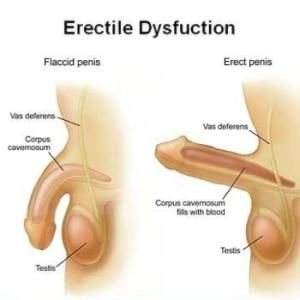 We can cure all your Erection Problems.. through Natural Massage Therapy...