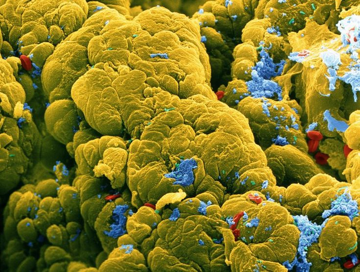 Two types of bacteria common in the gut may accelerate the growth of tumors, suggesting new possibilities for diagnosis and prevention.