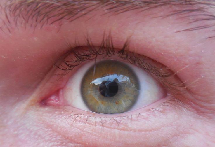 Sante - left eye