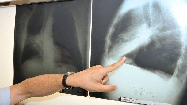 #Erfolgreiche Prävention: Deutlich weniger Krebstote in Amerika - FAZ - Frankfurter Allgemeine Zeitung: FAZ - Frankfurter Allgemeine…