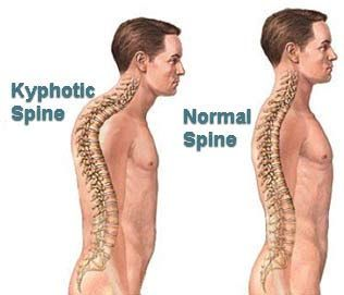 Kyphosis is an exaggerated curvature of the thoracic spine, resulting in a hunched back.