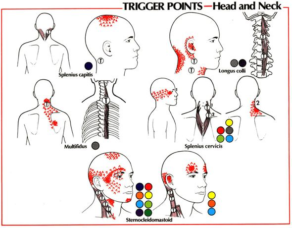 pain relief therapy - trigger points : head and neck