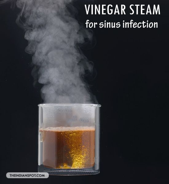 Apple Cider Vinegar Steam to Quickly Relieve a Sinus Infection