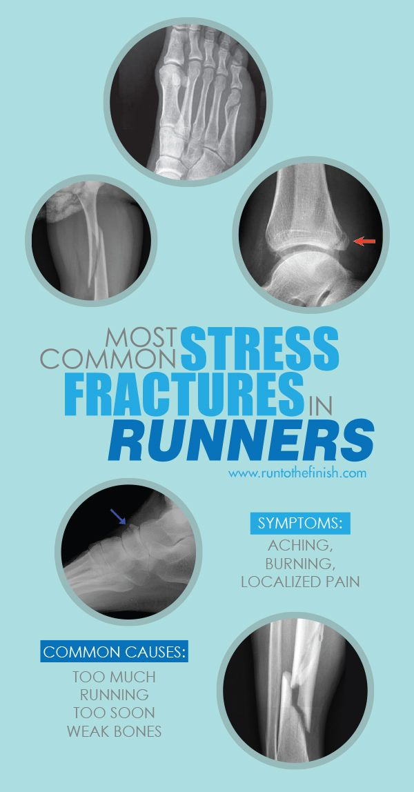 Stress fractures are one of hte most common injuries for new and long time runners - Learn what causes them and how to return to running after injury