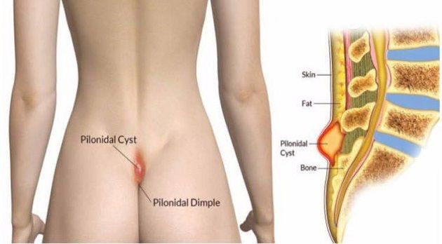 The pilonidal cyst appears due to an extreme and constant pressure on the sacrococcygeal location. It is formed along the tailbone, near the left of the butts and above the rectum, and appears like a sac and can worsen a currently existing cyst. It includes excrement of the skin and hair. The ingrown hair aggravates …