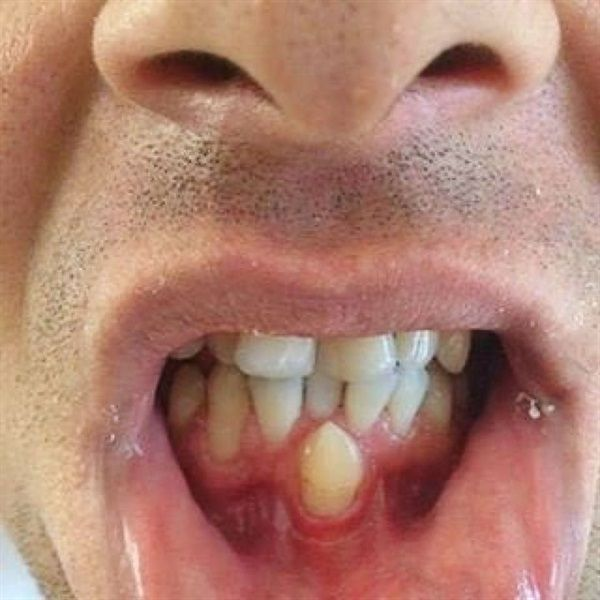 273 best orthodontics images on pinterest dentaltown have you ever seen a canine erupt into the midline solutioingenieria Image collections
