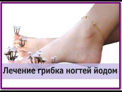 СЕНСАЦИЯ! Попрощайся с грибком ногтей и стоп с помощью смеси из 2 ингредиентов! - Страница 2 из 2