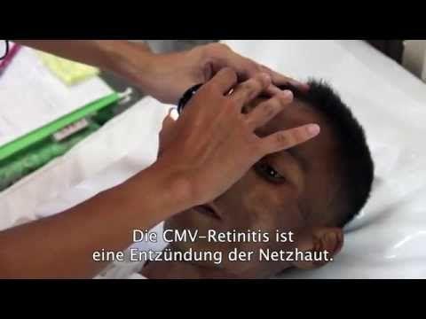 Myanmar: Neues Medikament gegen HIV-bedingte Erblindung