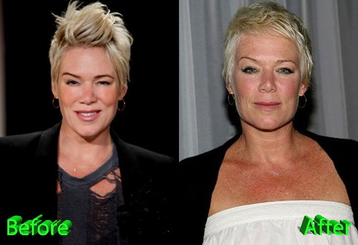 Mia Michaels Before and After Cosmetic Surgery
