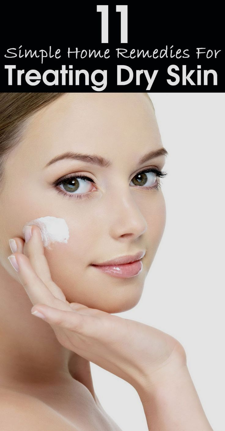 Pin By Holly On Skin Care Dry Skin On Face Treating Dry Skin