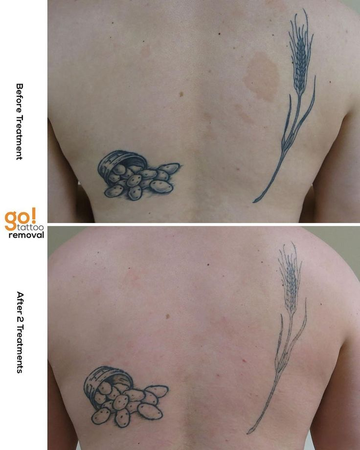 Tattoo Removal Quotes: 25+ Best Ideas About Patience Tattoo On Pinterest