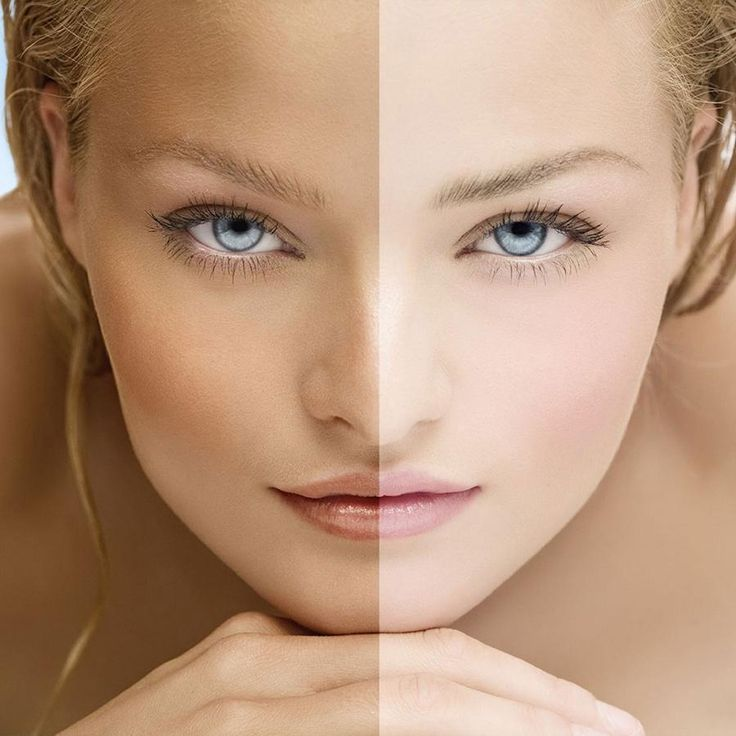 Which Foods Increase Melanin Production. Melanin is a pigment found in our skin, the iris of our eyes and our hair, and it is melanin which determines our skin color. It is also found in smaller quantities in the inner ear and brain. Melanin...