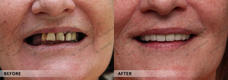 Do you want better looking Smile? Teeth #whitening by bleaching is very simple. Teeth bleaching break stains into smaller pieces and makes the colorless concentrated.Teeth Whitening Cost also cheap compare to other teeth Whitening techniques. http://the-smile-makeover.com/teeth_bleaching.php