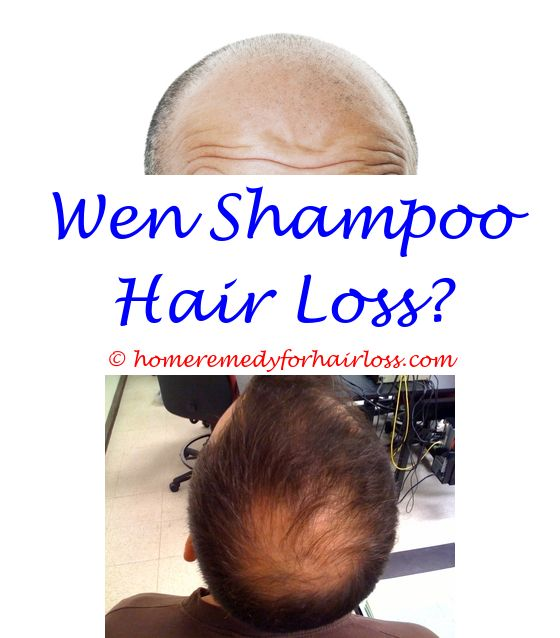 Low sex drive and hair loss