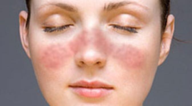 Ini 4 Penyakit yang Lebih Banyak Serang Cewek, Hati-hati Girls! - http://wp.me/p70qx9-8sk