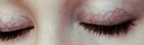 flowerette:  my sister has eyelids like this and she always looks like she's wearing lavender eyeshadow it's pretty
