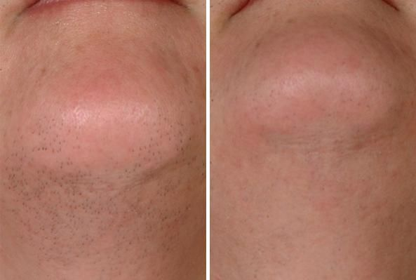 Hair Removal Before And After Removal Before After Hair