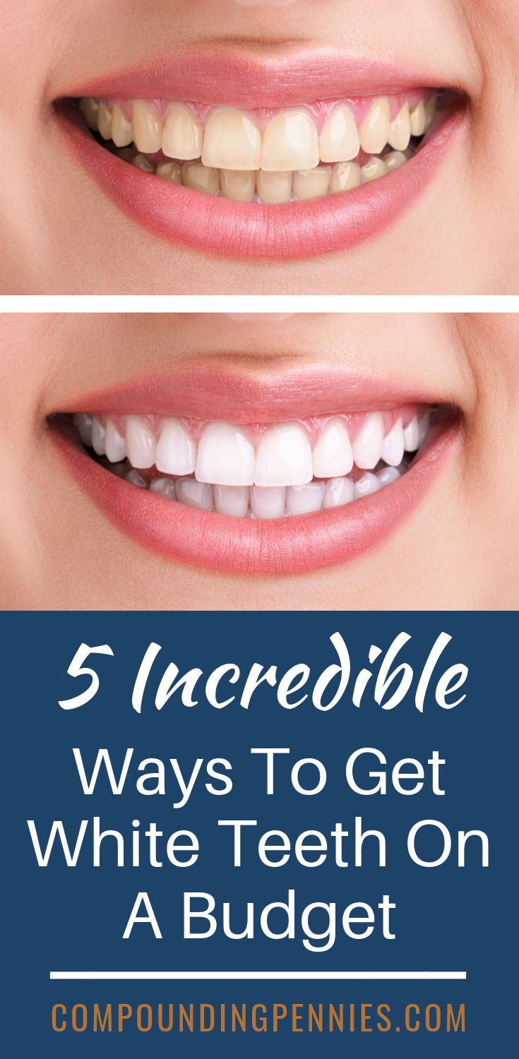 how to make your teeth stronger and whiter at home