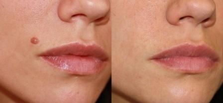 Mole removal before and after laser treament