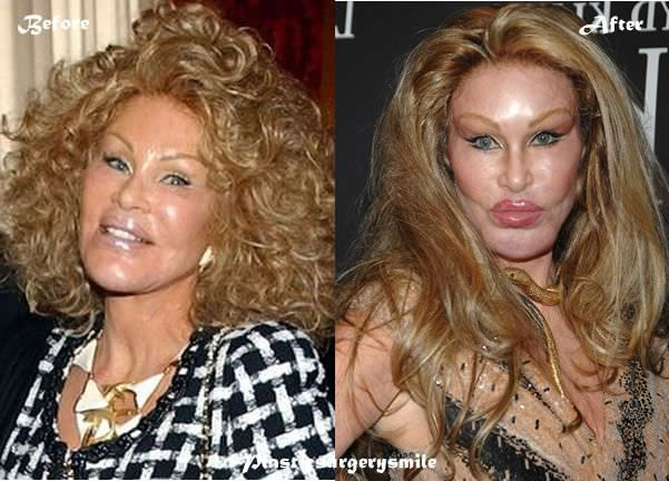 10 Craziest Stories Of Plastic Surgery Obsessions - YouTube