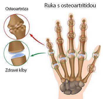 Ruka s osteoartritídou