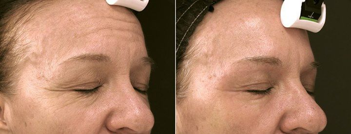 Cynosure SmartSkin CO2 Laser Resurfacing - Non-surgical, non-invasive treatment for wrinkle reduction, under eye bags, resurfacing texture of skin – the results youthful appearance and smooth texture! Visit