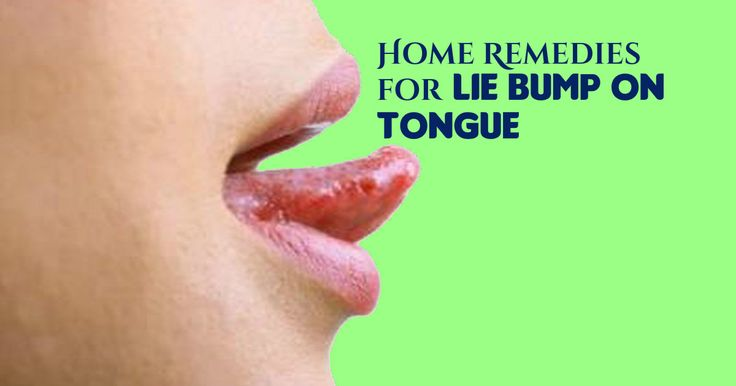 All the home remedies for lie bumps on tongue that have been discussed here are tried and tested ones and hence, you need not be doubtful