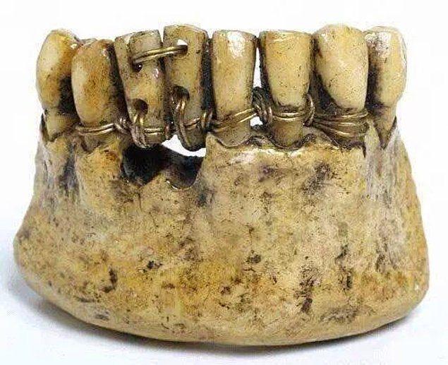 Настолько суровы были древнеримские стоматологи.