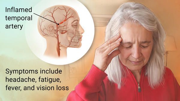 Older woman touching her head in pain. Close-up of the inflamed temporal artery.