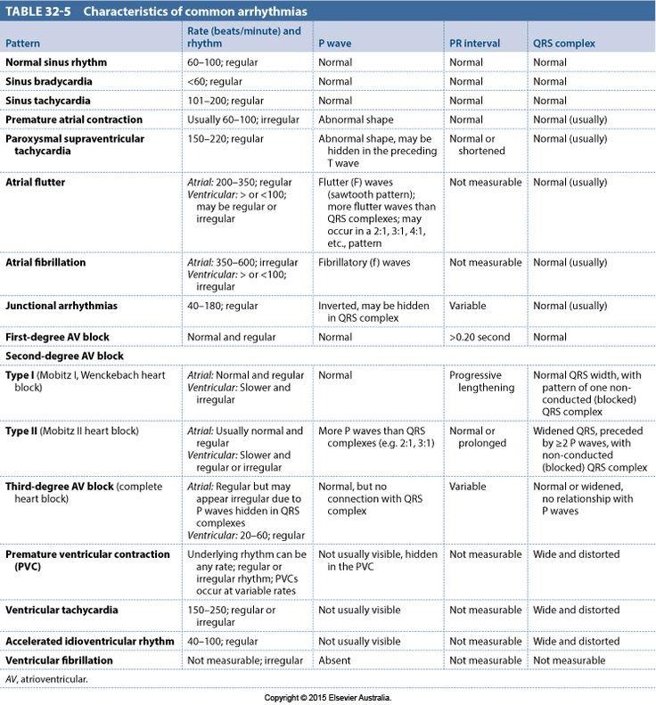 Characteristics of common arrhythmias Normal sinus