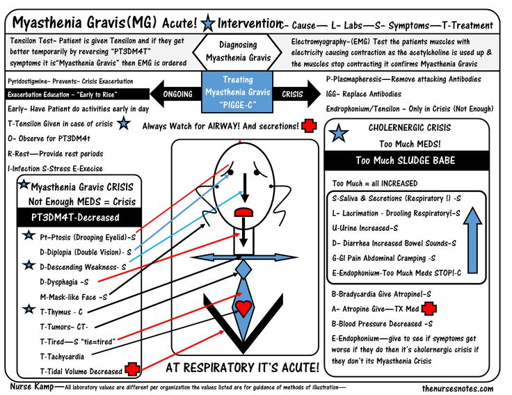 Myasthenia Gravis Tensilon Crisis ptosis diploplia nursing_labs_mnemonics_Nurse_Kamp