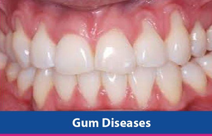 Natural Home Remedies For Gum Disease