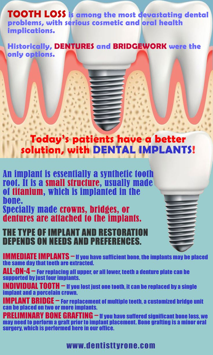 Dental Implants Tyrone GA: Dental implant treatment from Tyrone Family Dentistry is a beautiful, healthy, and long-lasting solution for replacing one, multiple, or all of your teeth.#dentalimplants #implant #surgery #tooth #healthyliving #options #smile #restoration #tyrone #georgia
