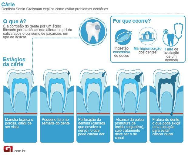 Dente deve ser escovado durante 2 minutos e, no mínimo, 3 vezes ao dia Manter os dentes limpos é importante para evitar cárie, gengivite e tártaro. Médicos alertam ainda que é ideal usar o fio dental, ao menos, 1 vez ao dia.